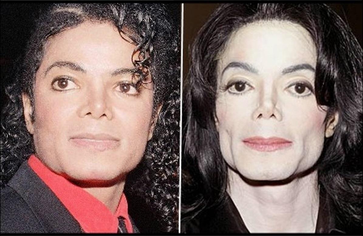 Michael Jackson S Disease Vitiligo